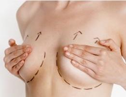 Увеличение груди в Москве цена от 139 000 рублей