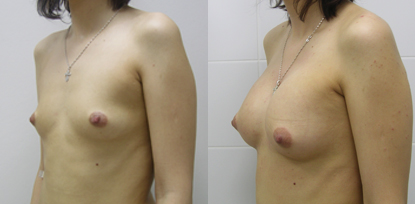грудь1